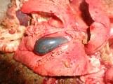 Hypertrophie de la vesicule biliaire